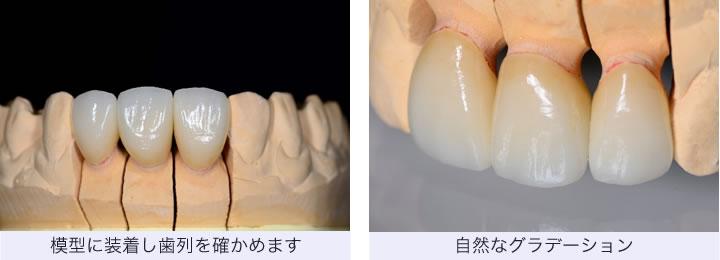 セラミックの歯2