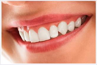 ④歯面の研磨
