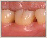 歯周組織回復