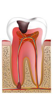 ①重度の虫歯に処置