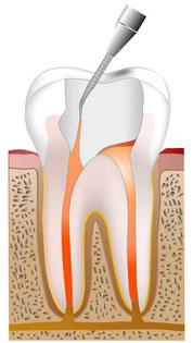 ④歯科用セメントで充填